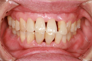 Gum Recession Beverly Hills: Gum recession is not something you would want to ignore. Make an appointment with