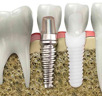 Beverly Hills Dental Implants - Dental Implants