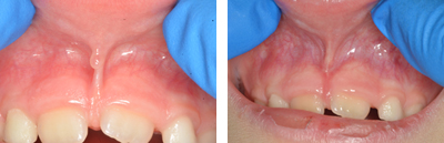 Before and after Periodontist Beverly Hills - Frenectomy Before and After Case 1