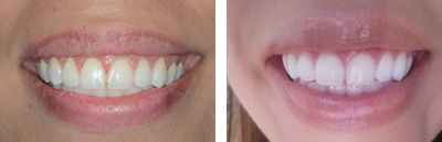 Before and after Periodontist Beverly Hills - Gummy Smile Before and After Case 1