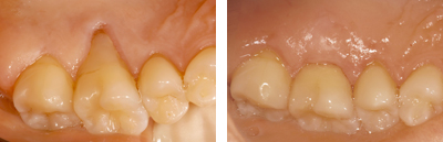Before and after Periodontist Beverly Hills - A Connective Tissue graft Before and After Case 1