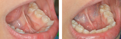 Before and after Periodontist Beverly Hills - Tongue Frenectomy Before and After Case 1